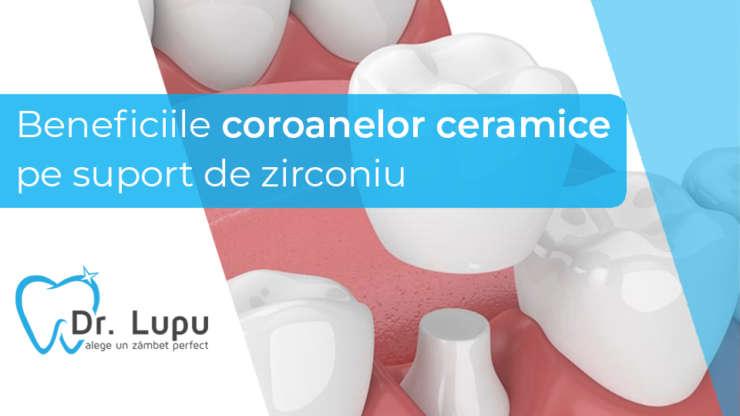 Beneficiile coroanelor ceramice pe suport de zirconiu