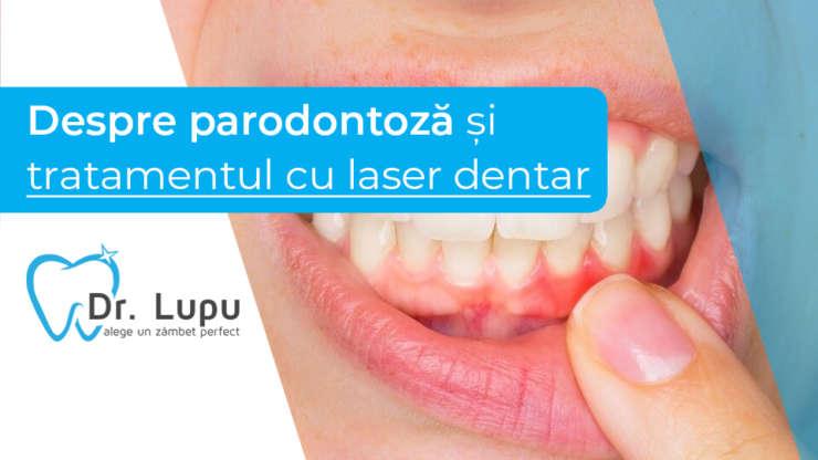 Despre parodontoza si tratamentele cu laser dentar