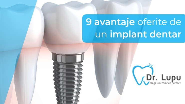 9 avantaje oferite de un implant dentar