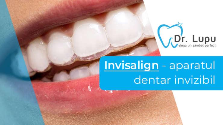 Invisalign – aparatul dentar invizibil