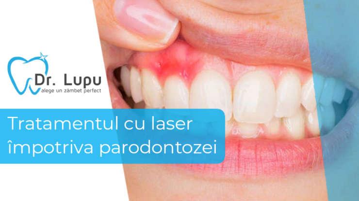 Tratamentul cu laser impotriva parodontozei