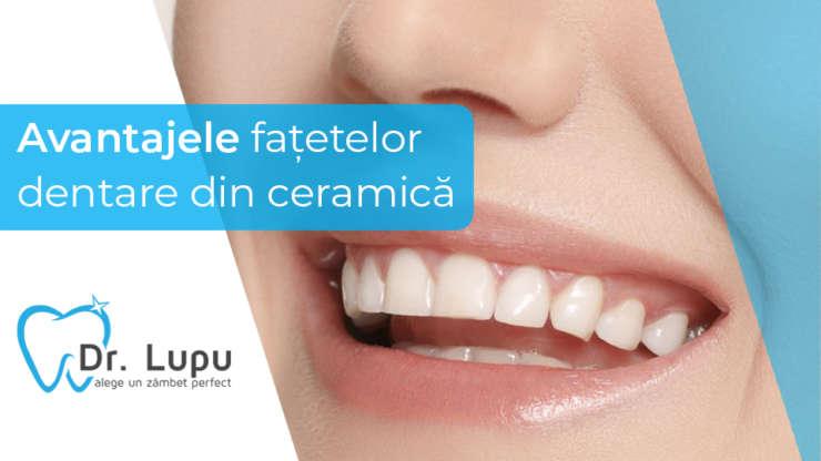 Avantajele fatetelor dentare din ceramica