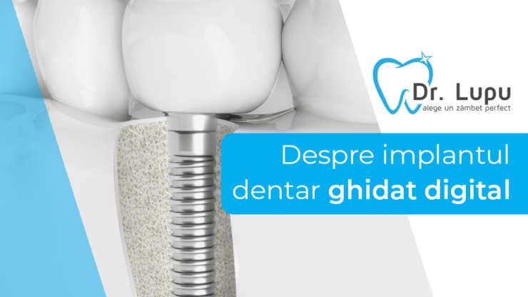 Implantul dentar ghidat digital