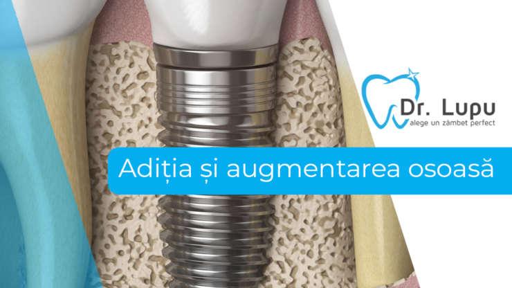Aditia si augmentarea osoasa