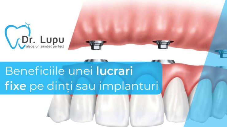 Beneficiile unei lucrari fixe pe dinti sau implanturi