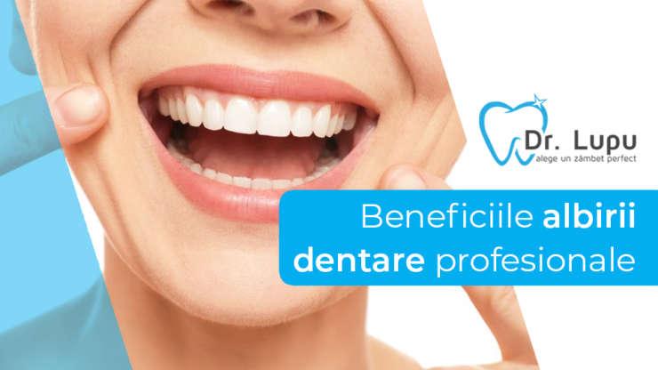 Beneficiile albirii dentare profesionale