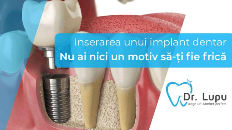 Inserarea unui implant dentar – nu ai nici un motiv sa-ti fie frica