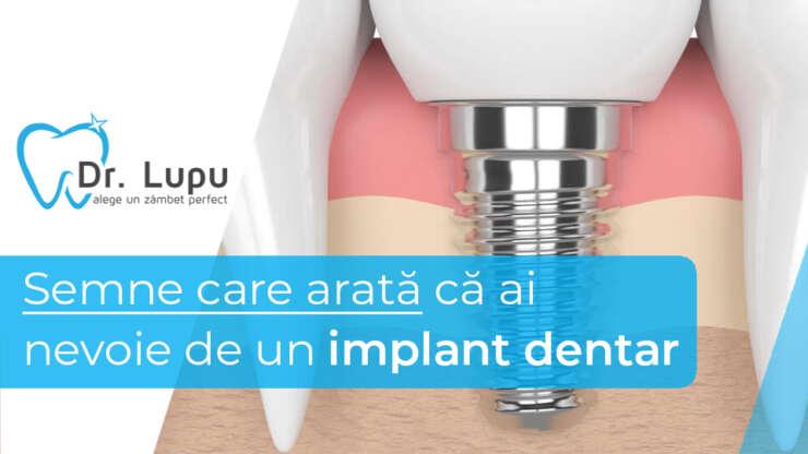 Semne care arata ca ai nevoie de un implant dentar