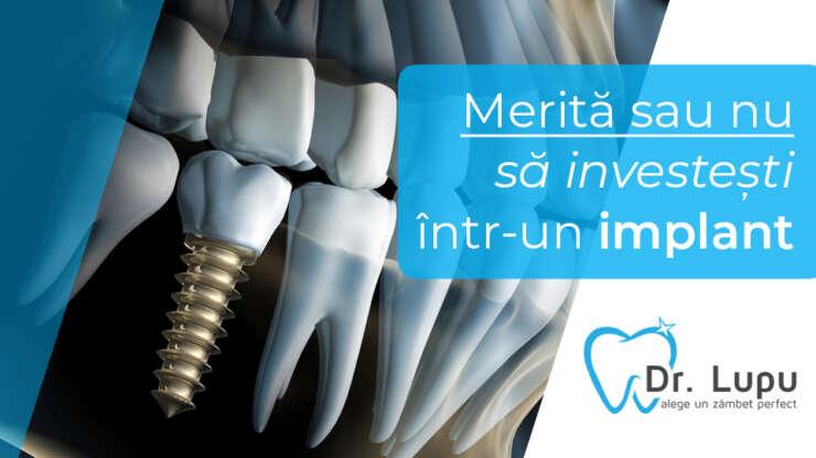 Merita sau nu sa investesti intr-un implant?