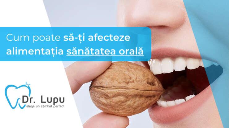 Cum poate sa-ti afecteze alimentatia sanatatea orala